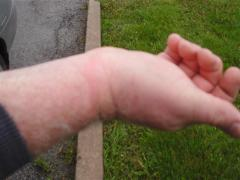 120423 Welts on Mark Vandermaas' wrist after being cuffed for 2+ hours in paddy wagon.